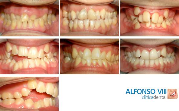 Alteración de malposición de los dientes en unos huesos que sí han crecido correctamente.