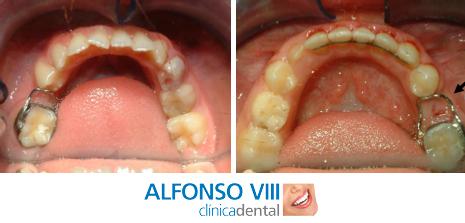 Tratamientos preventivos mantenedores de espacio para evitar apiñamientos y desviaciones de líneas medias por movimientos dentarios cuando se produce una pérdida prematura de dientes temporales