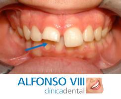 Prevención de fracturas dentarias