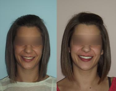 Clinica dental en Plasencia